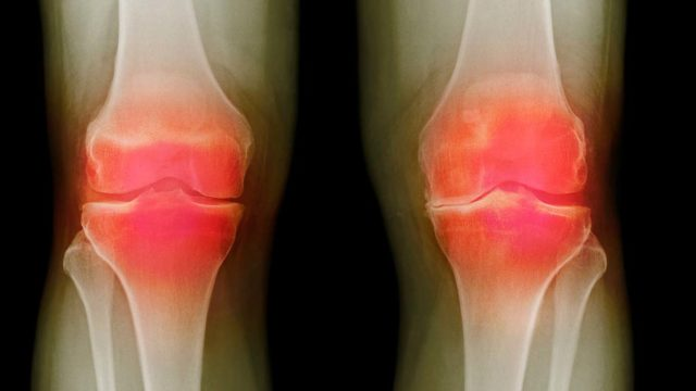 Breakthrough ... new arthritis drug could be on the way. Picture: Getty